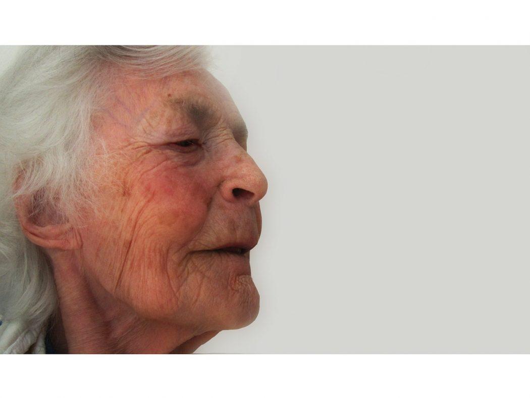 dementia-63608_1280