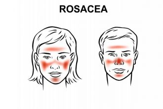 rosacea-disease-overview_reference