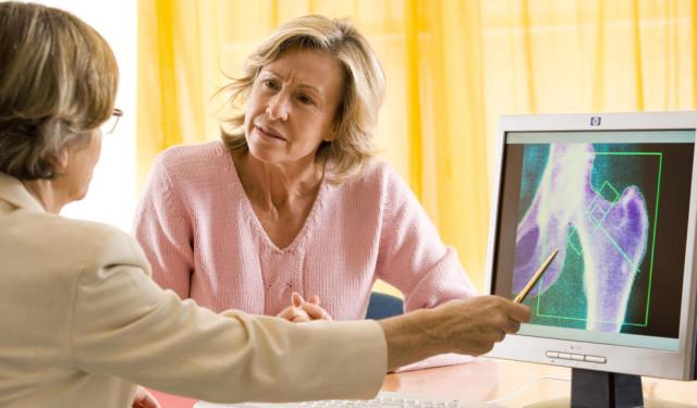 osteoporosis-640x375