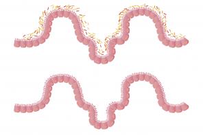 intestines-1468807_1280