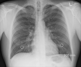 diagnosis-1476620_1280