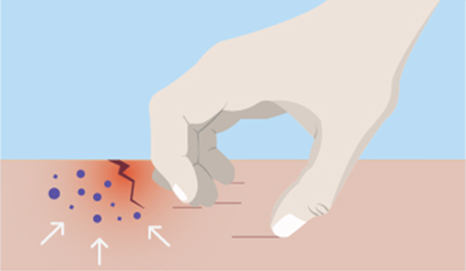 Science-of-Eczema-Step2